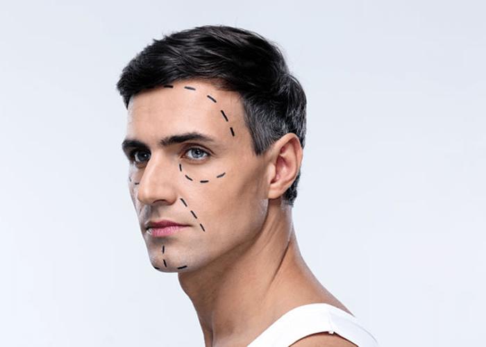 Ilukirurgia – kas ainult edevatele?