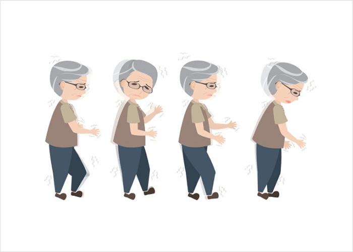 Parkinsoni tõbi aeglustab elurütmi