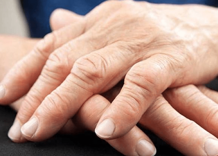 Reumatoidartriit ei tunne vanusepiire
