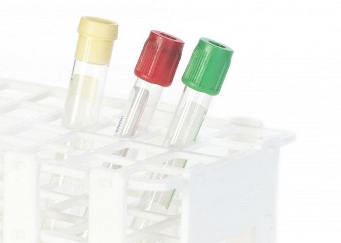 Milliseid verenäitajaid võiks taimetoitlane kontrollida